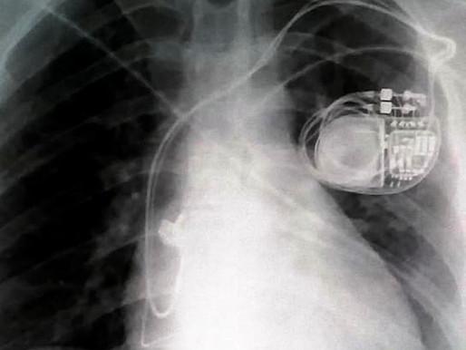 """חדשנות בתחום הרפואה - והשפעת """"מהפכת האינטרנט הרפואי של הדברים"""" על האדם הנושא בגופו את ההתקן"""