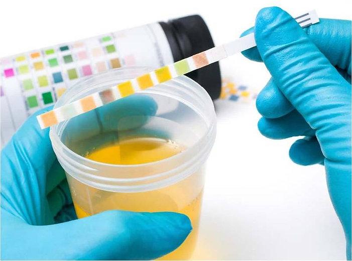 urine-test-strips-fb.jpg