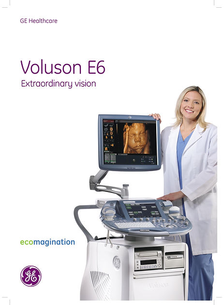 Voluson E6