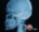 Сканирование рентгеновских снимков и МРТ