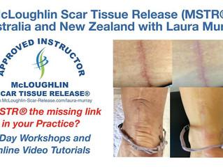 McLoughlin Scar Tissue Release