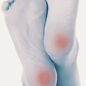 ~ INVESTIGATION ~_Oh heel pain...just wh