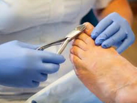 TOE NAIL CUTTING. DID ANYONE EVER SHOW YOU THE CORRECT WAY TO DO IT?