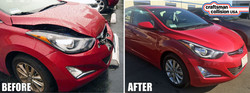 Hyundai Elantra Collision Repair