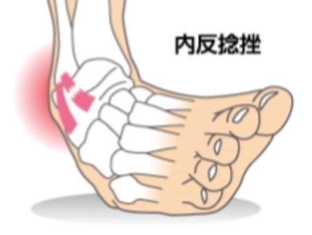 外傷シリーズ2:関節を捻ったら骨の位置を戻しましょう!
