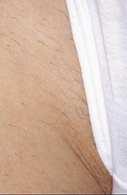 after laser hair removal treatment kalo laser hair removal