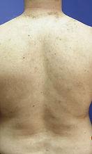 mans back after kalolaser treatment