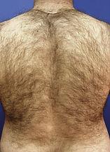 mans back before kalolaser treatment
