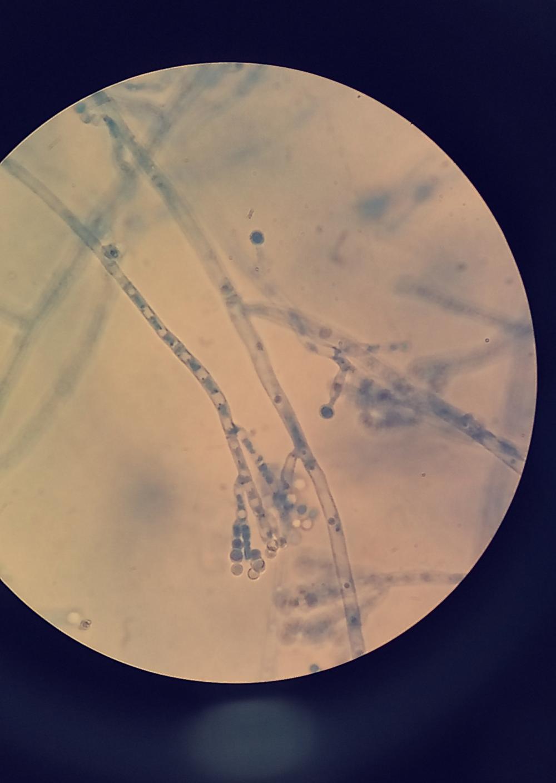 Penicillium notatum under a microscope
