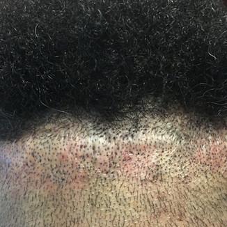 Scalp Micropigmentation into Strip Scar