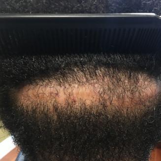 Large FUT Scar