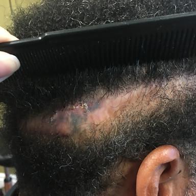 FUT Strip Scar
