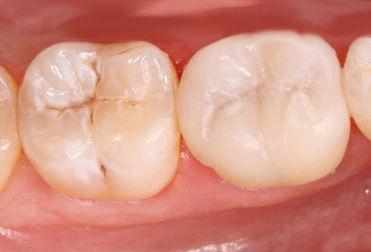 OVC3 One Visit Dental Crown