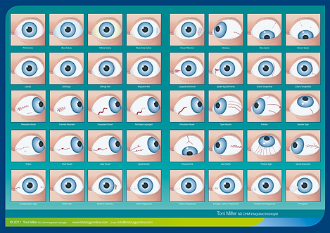 Integrated Iridology® Signs in the Sclera