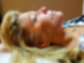 acupuncture esthetique