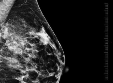 Breast Cancer & Coronavirus (COVID-19)