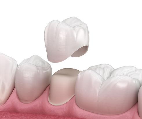 Dental Crowns Manchester