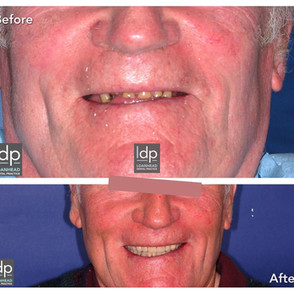 Implants, crowns and composite build ups