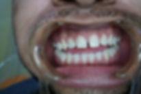 anterior-7-before.jpg