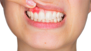 Connection Between Gum Disease And General Health Condition