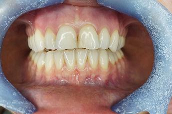 anterior-8-before.jpg