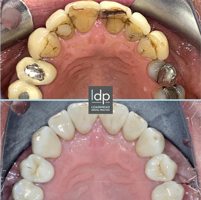 Failing restorations restored with Ceramic Crowns