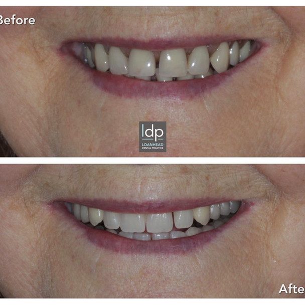 Aesthetic Dentures