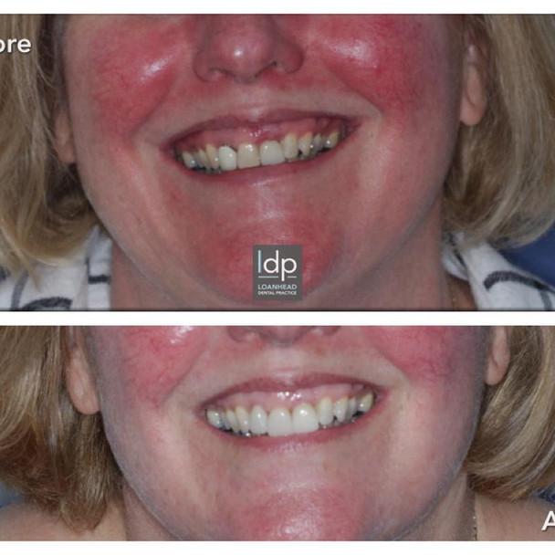 Implants, Veneers and Tooth Whitening