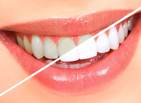 Teeth whitening: at home or in-surgery?