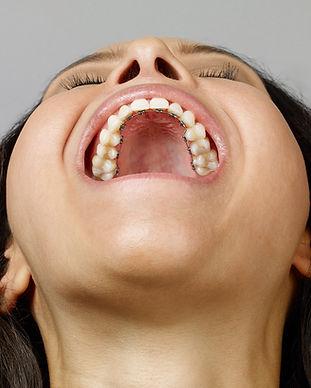 lingual-braces-3.jpg