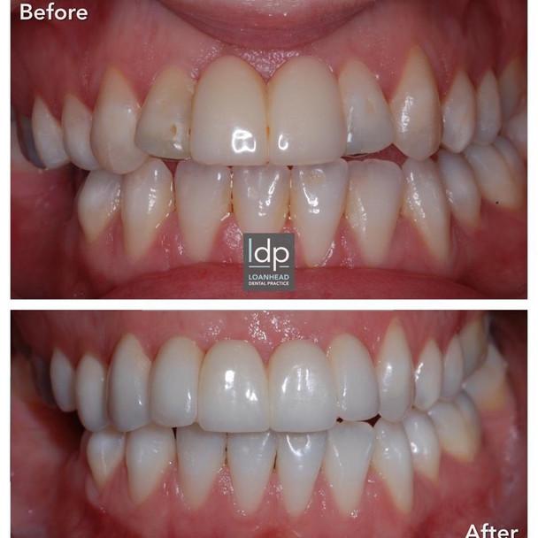 Tooth Whitening and Bridgework