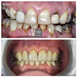 Veneers, Implants, Bridgework, Gum Reshaping