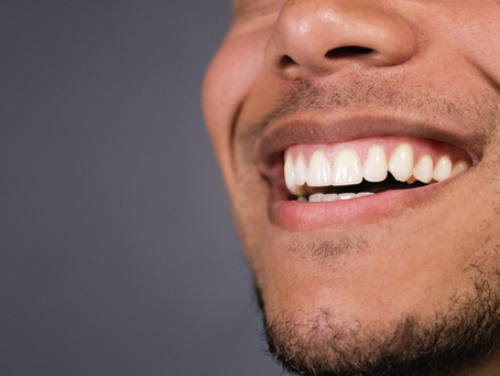 How to Achieve a White and Healthy Smile without Spending a Fortune