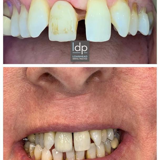 Dental implants and Veneers