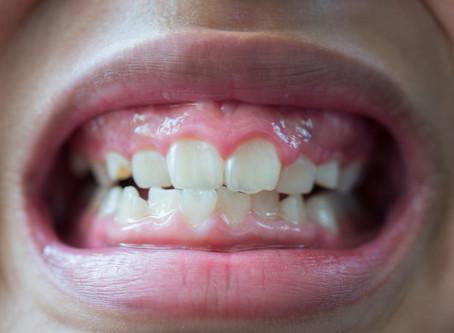 Tooth Erosion