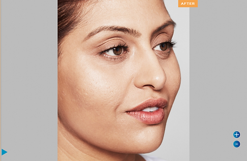 Screenshot 2021-08-02 at 11-18-38 Restylane Skinboosters Refresh Your Skin With Aesthetics