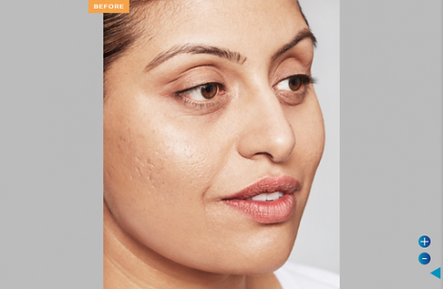 Screenshot 2021-08-02 at 11-18-31 Restylane Skinboosters Refresh Your Skin With Aesthetics