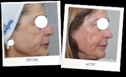 Skin-resurfacing_Guillermo-Badaracco_Der