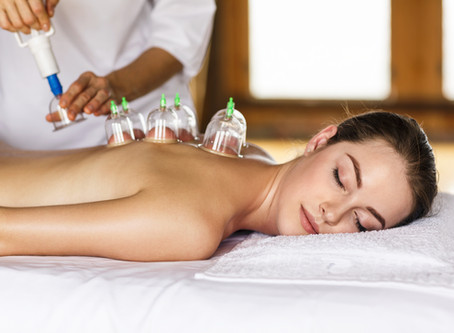 Cupping Therapy: A Needle-Less Alternative to Acupuncture