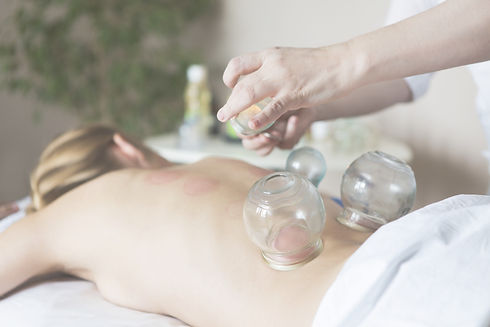Cupping Massage Therapu RMT Winnipeg