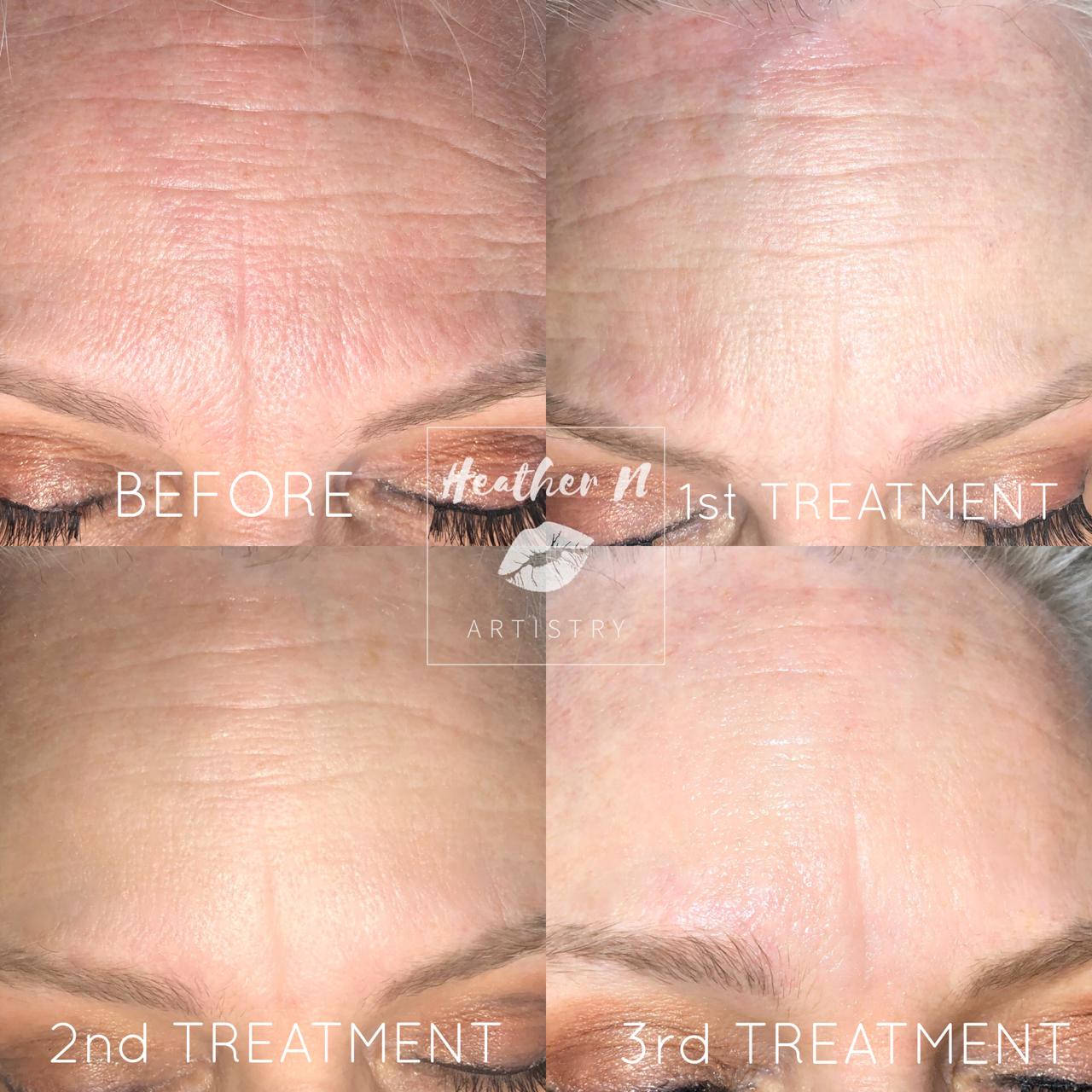 Mesotherapy Skin Rejuvination