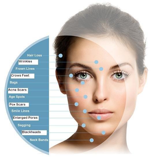 meso treatment areas.jpg