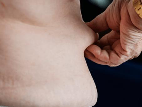 Justiça determina que plano de saúde autorize cirurgia corretora pós-bariátrica