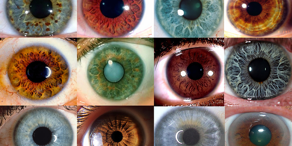 Iridology Mini-Sessions with Steven Galloway, CNP