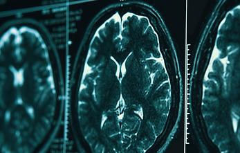 医療機関用紹介サイト(BrainSuite)