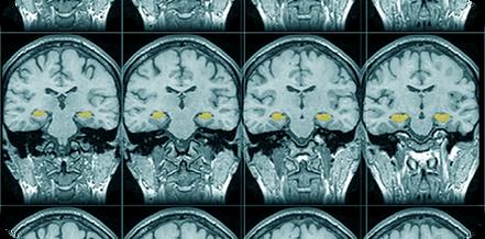 MRI@2x.png