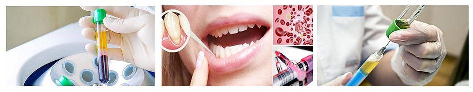 plazmolifting-stomatologiia2.jpg