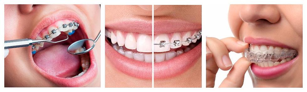ortodontiia-dentis.jpg