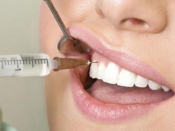 Plazmolifting-v-stomatologii.jpg