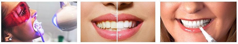 otbelivanie-zubov3.jpg